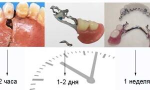 як відремонтувати зубний протез в домашніх умовах